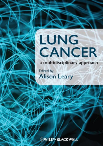 Lung Cancer: A Multidisciplinary Approach by Alison Leary